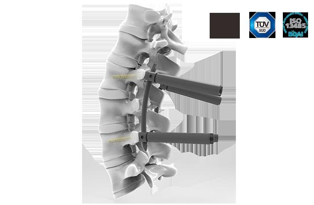脊柱后路内固定系统-CTS微创