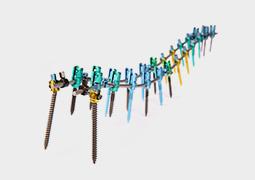 脊柱后路内固定系统