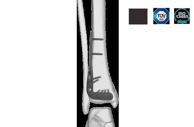 胫骨远端锁定板