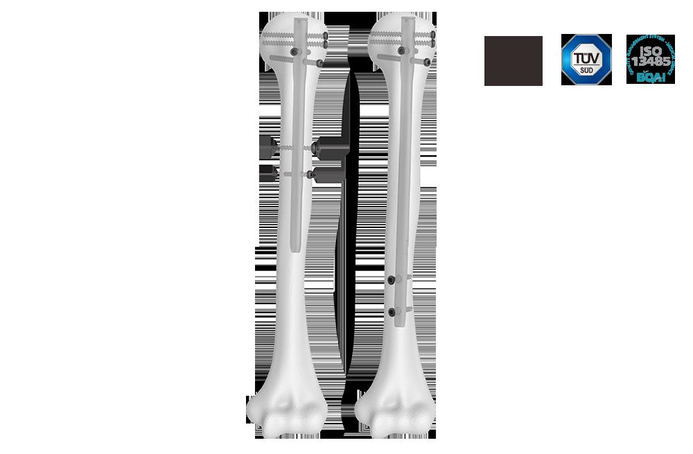 肱骨髓内钉