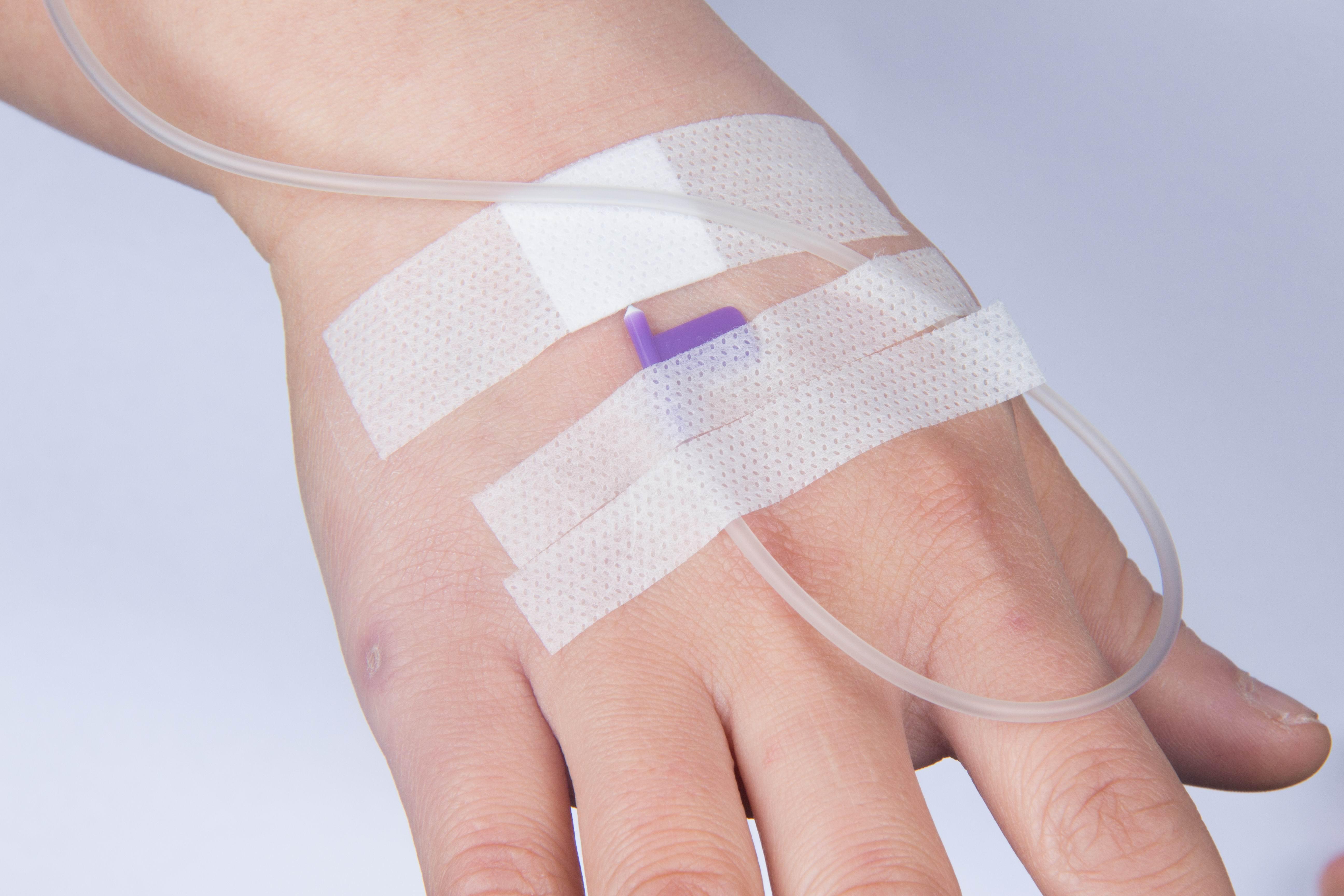 醫用輸液貼
