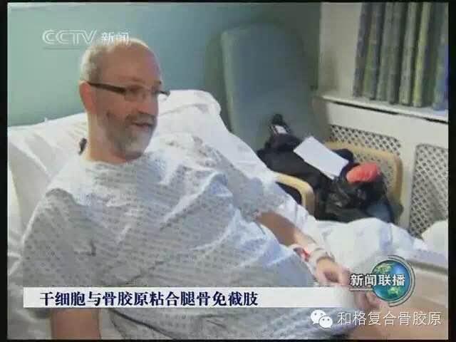 《新闻联播》:英国坎伯兰郡临床干细胞和骨胶原混合液黏合腿骨的新疗法获得临床成功