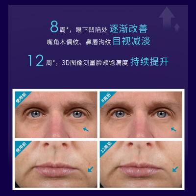 加工定制減紋滋潤玻色因精華液 HA緊致抗皺蘋果肌抗衰老精華oem3